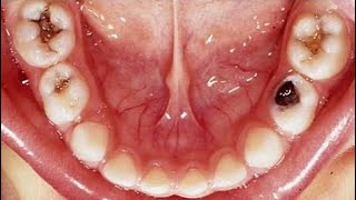 Kill Tooth Pain Nerve In 3 Seconds Permanently With This Tooth Ache R