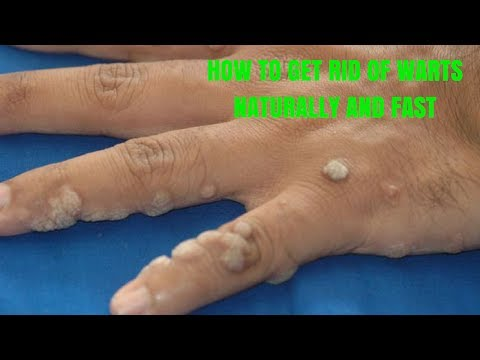 HOW TO GET RID OF WARTS NATURALLY AND FAST
