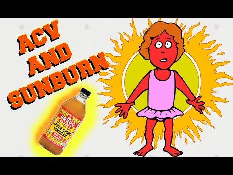 Sunburn Remedy| Apple Cider Vinegar