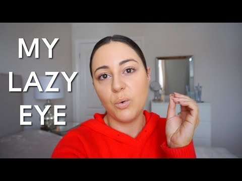 VLOG - I open up about my lazy eye & surgery.