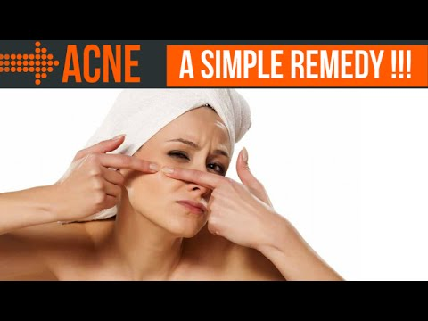How to Be Acne Free: A Simple Remedy
