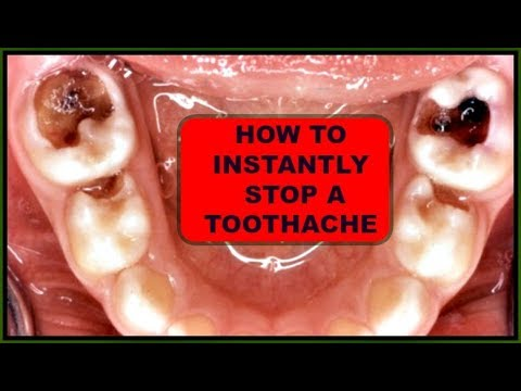 INSTANT TOOTHACHE RELIEF, NATURAL TOOTHACHE REMEDIES 100 % EFFECTIVE Khichi Beauty