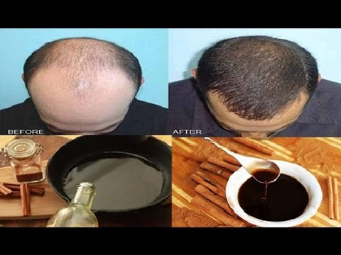 😘Forget About Hair Loss And Baldness! Regrow Your Hair With This Magic Recipe In Only Two Days