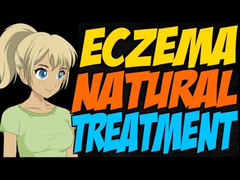 Eczema Natural Treatment