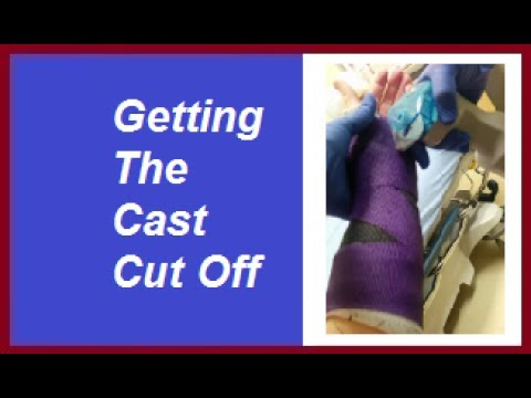 Getting The Cast Cut Off: Life With A Cast Episode 24