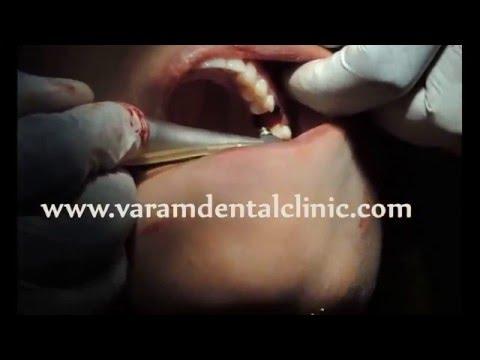 Dental Dual Implants In Single Molar Triple Root Replacement - VaRam Dental Virudhunagar