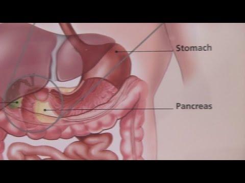 Irritable Bowel Syndrome & Its Symptoms