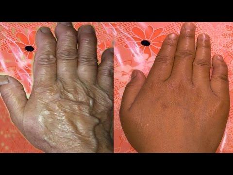 How to stop wrinkles on hand & fingers - कैसे हाथ और उंगलियों पर झुर्रियों को रुकें