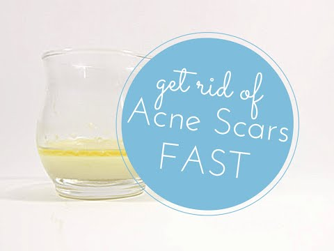 Get Rid of Acne Scars Fast