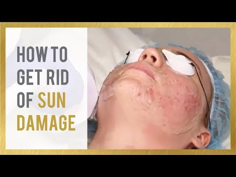How to Get Rid of Sun Damage | Clear Skin in 7 Days