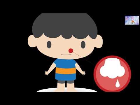 Nose bleeding  epistaxis  Define, causes,diet & treatment  नाक से खून बहने के रोकने के उपाय।
