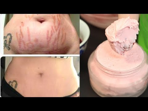 I Made This Homemade Cream To Remove Stretch Marks Permanently In 1 Month