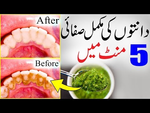 How To Whiten Teeth In 5 Minutes - Homemade Toothpaste