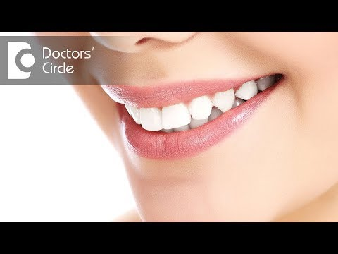 Do all teeth whiteners work on colored fillings? - Dr. Bharani T S