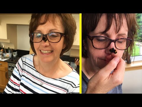 Woman Forms Incredible Bond With A Bee Born Without Wings!