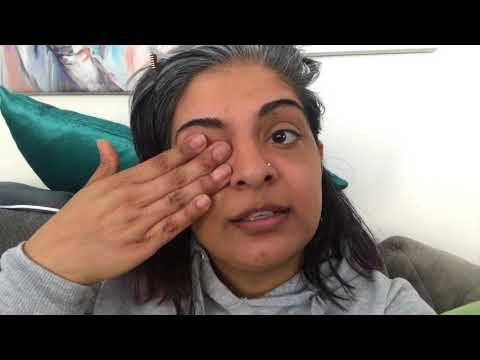 How To Get Rid Of A Stye Safely & QUICKLY - Kids Popped Stye And Drained In 2 Days