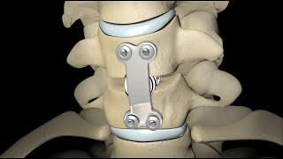 Spinal Fusion (2010)