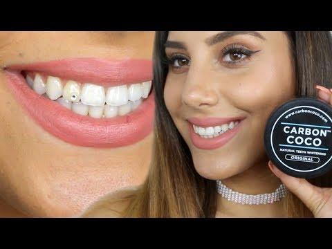 White Teeth in 14 Days ?! Carbon Coco Review