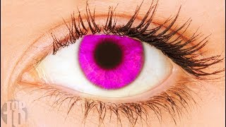 11 Rarest Eye Colors In Humans