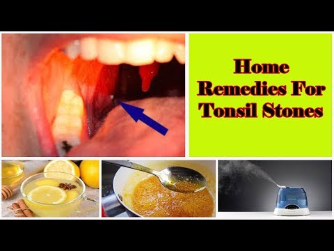 Home Remedies For Tonsil Stones Removal | V 4 YOU