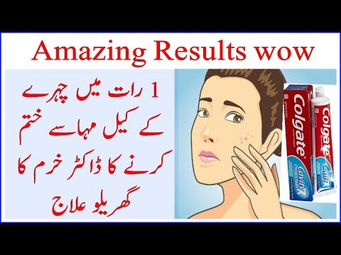 How to Remove Pimples with Toothpaste in 1 Night | amazing results | by Dr khurram