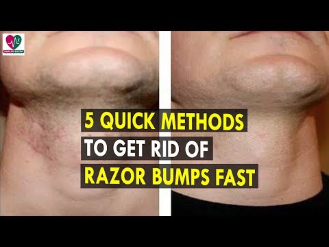 5 Quick Methods to Get Rid of Razor Bumps Fast || Health Sutra - Best Health Tips