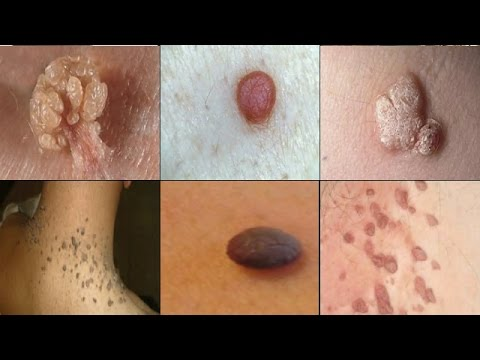 NATURAL AND EASY WAYS TO GET RID OF SKIN TAGS, MOLES AND WARTS