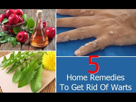 Top 5 Home Remedies To Get Rid Of Warts |  Rid Of Warts | Home Remedies