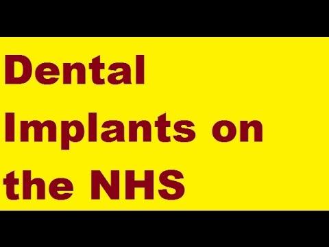 Dental Implants on the NHS WARNING