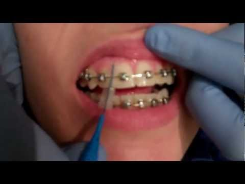 How to Keep Orthodontic Braces Clean in Valrico, Brandon, and Lithia FL