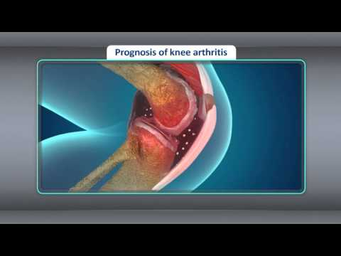 [Treatment] Treatment for Osteoarthritis of the Knee