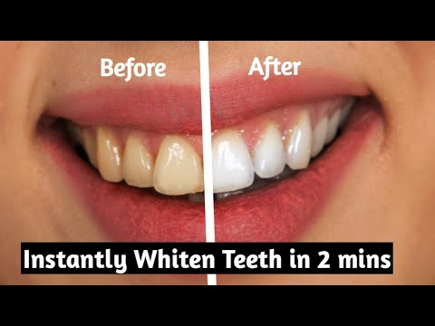 How to whiten teeth at home in 2 minutes without baking soda - 100% working