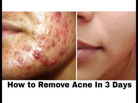Get rid of Acne in just 3 Days || 3 Steps Spot Treatment Technique || Ishita Chanda