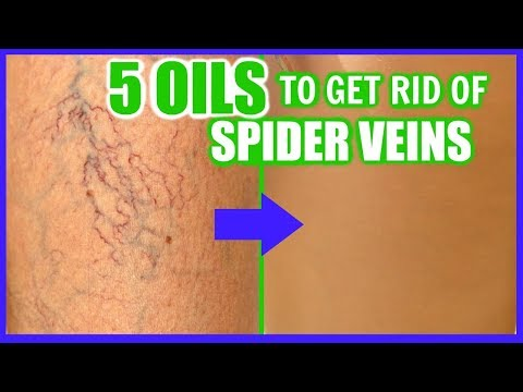 HOW TO GET RID OF SPIDER VEINS WITH ESSENTIAL OILS! │ TOP 5 OILS TO FADE AND ERASE VARICOSE VEINS!