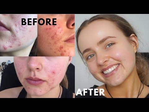 HOW I CLEARED MY ACNE AFTER YEARS OF TRYING | Skin Care Routine | Conagh Kathleen