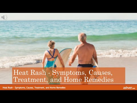 Heat Rash - Symptoms, Causes, Treatment, and Home Remedies