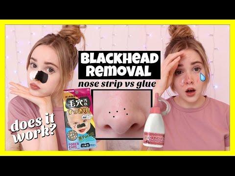 Blackhead Removal | Glue vs Nose Strips | Daikhlo  Blackhead Remov...