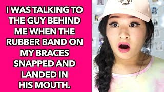 Awkward Stories About Having Braces!