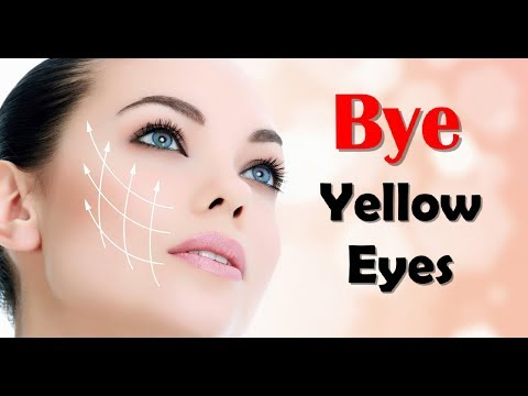 How To Get Rid Of Yellow Eyes AndTop 1 0 Foods To Help Your Eye Sight