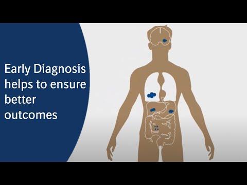 Lung Cancer Statistics