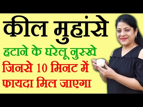 Blackheads Removal Tips In Hindi ब्लैकहेड्स के घरेलू नुस्खे Beauty Tips in Hindi by Sonia Goyal #85