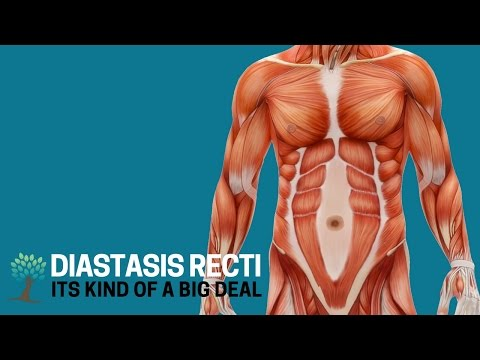 Here's Why Diastasis Recti is a Big Deal - Diastasis Ed #1