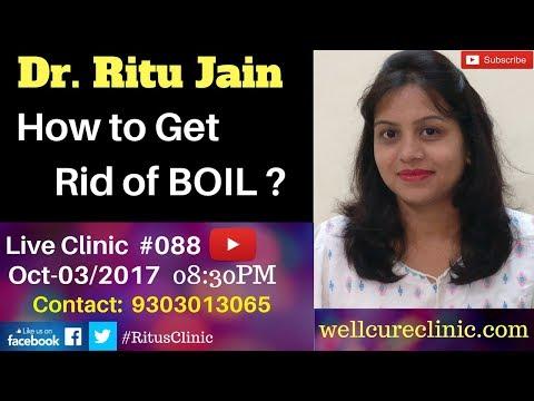 How to Get Rid of a Boil Fast-रातों रात फुंसी को कैसे ठीक करें? -Dr.Ritu's Live Homepathy Clinic#088