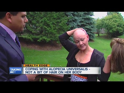 Woman living with Alopecia Universalis