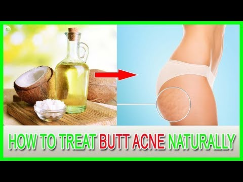 How To Treat Butt Acne Naturally | Best Home Remedies