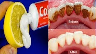 This Not A Joke Remove Dental Plaque In 1 Minutes Without Going To The Dentist