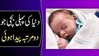 Allah Ki Shan Dunia Ki Pehli Bachi Jo 2 Martaba Paida Hoi | دنیا کی پہلی بچی جو مرتبہ پیدا ہوئی