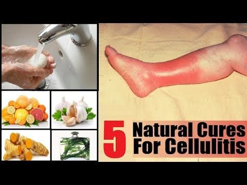 5 Home Remedies to Get Rid of Cellulitis Infection.