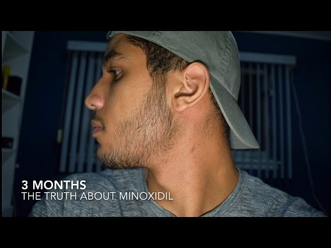 Minoxidil Side Effects: Results & The Truth of Minoxidil Beard Growth (3 Months) | IHazADream