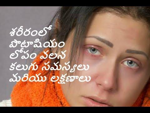 Telugu Low Levels of Potassium in the Human Body, Symptoms and Problems|Potasiuum Levels|Kratika Tv